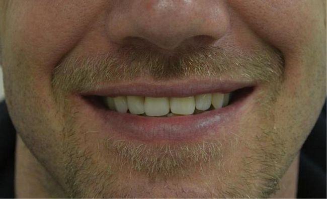 акриловые протезы зубные