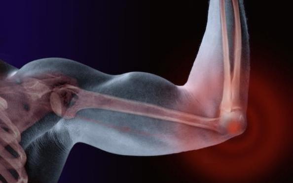 связки локтевого сустава анатомия