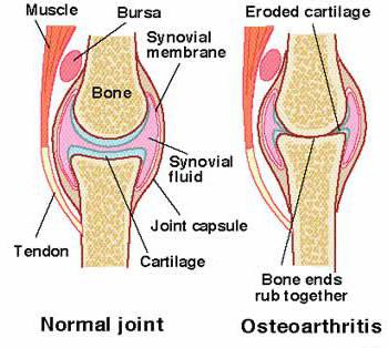 артроз локтевого сустава лечение