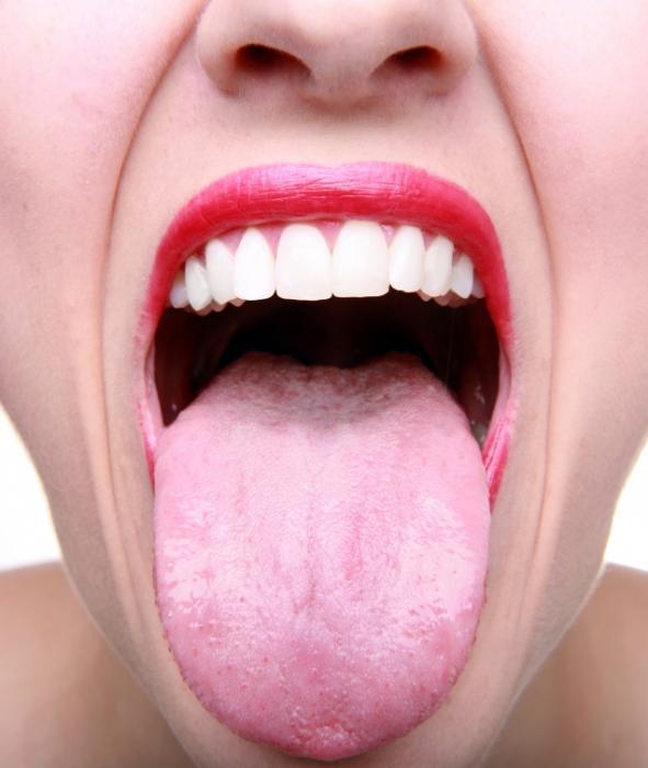 Белый налет на языке у взрослого: причины возникновения и лечение