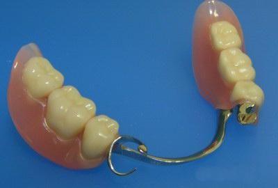 бюгельное протезирование зубов отзывы