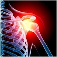 остеоартроз плечевого сустава 1 степени