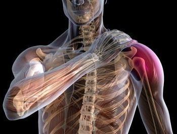воспаление плечевого сустава, лечение