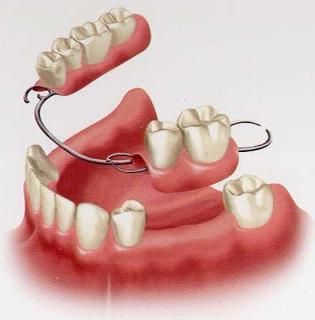 зубные протезы стоимость