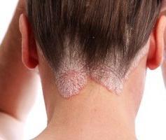 Чем лечить псориаз, или все, что нужно знать о болезни