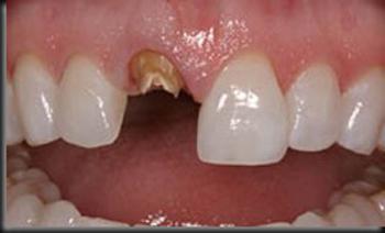 протезирование переднего зуба