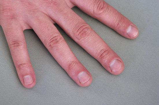 грызет ногти