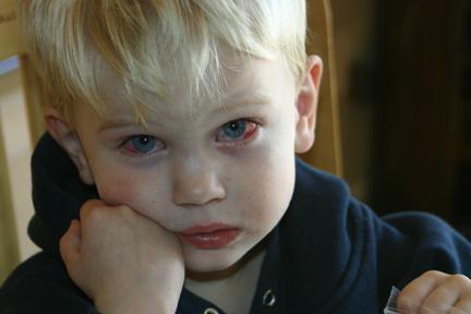 Что делать, если гноится глазик у новорожденного