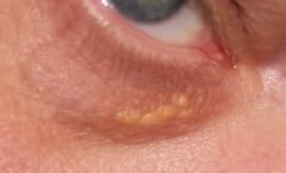 Что означают белые точки под глазами