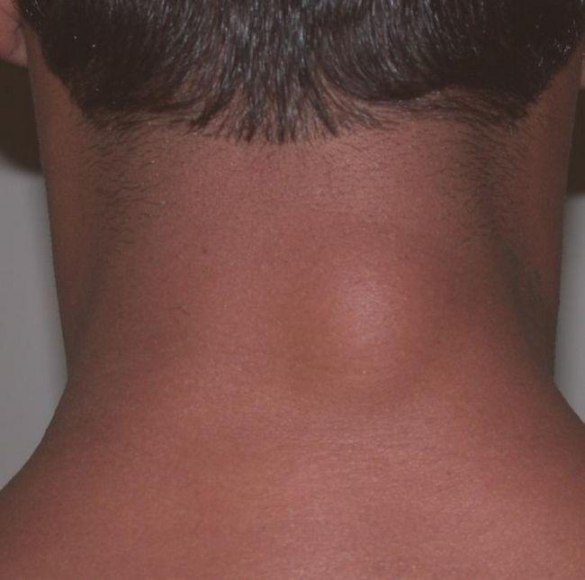 Что такое липома? Общая характеристика и лечение