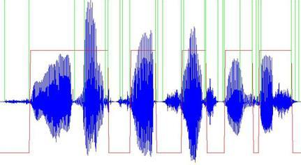 Что такое обработка голоса, как это делать и что вам поможет этому научиться