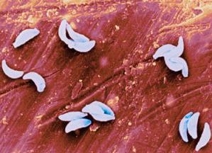 пцр токсоплазмоз