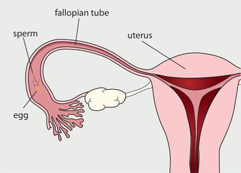 разрыв фаллопиевой трубы