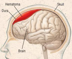 гематома головного мозга это