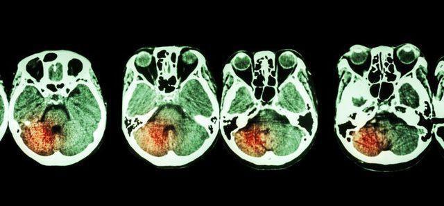 Геморроидальный инсульт