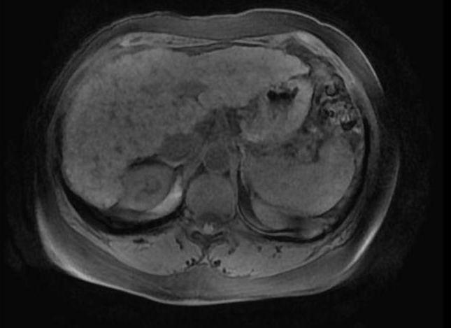 Дисфункция гепатобилиарной системы