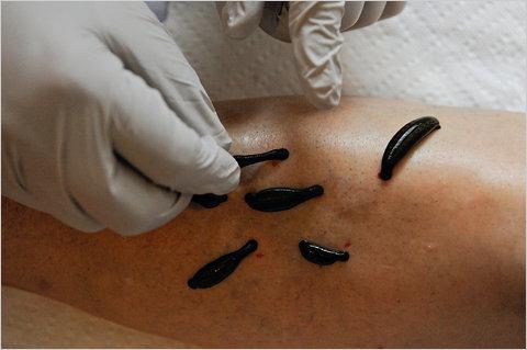 Гирудотерапия - насколько эффективно лечение пиявками варикоза