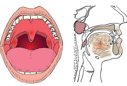 Хронический тонзиллит: увеличенные миндалины у ребенка