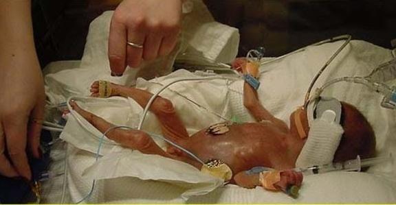 Энтероколит у новорожденных