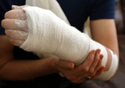сломала руку
