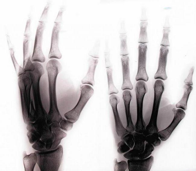 со сломанной рукой