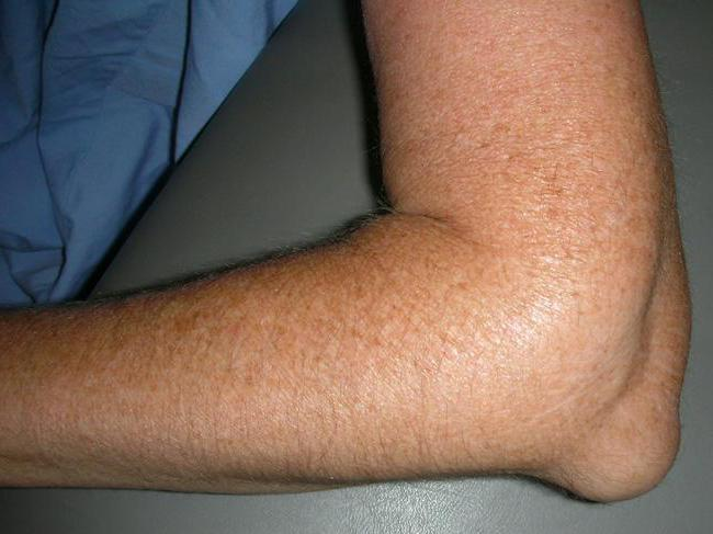 Ушиб локтевого сустава