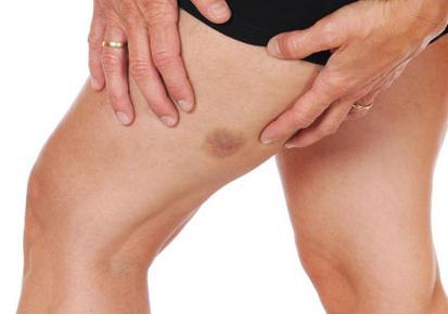 Как можно определить симптомы тромба в ноге