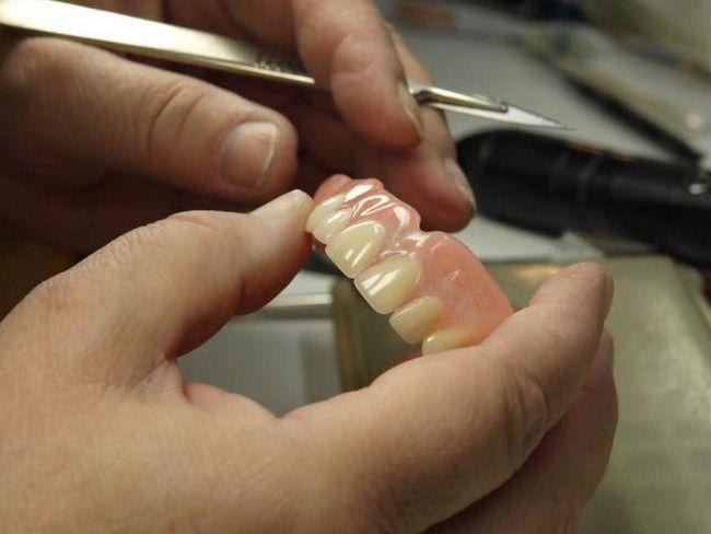 Ремонт зубных протезов в Москве