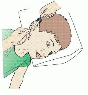 Как правильно использовать ушные капли для детей?
