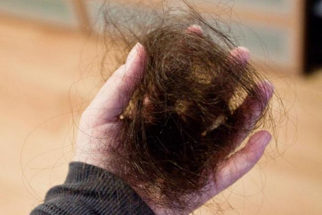 Какие самые распространенные причины выпадения волос?