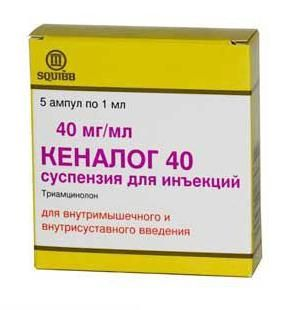 стероидные противовоспалительные препараты для суставов
