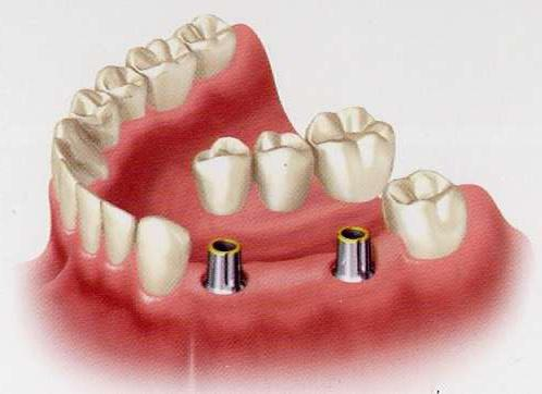 какие зубные протезы лучше поставить если вообще нет зубов