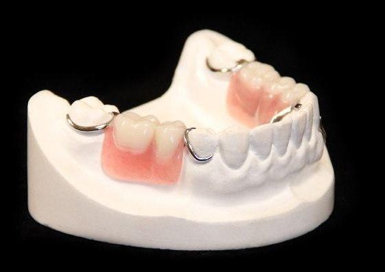какой съемный зубной протез лучше поставить