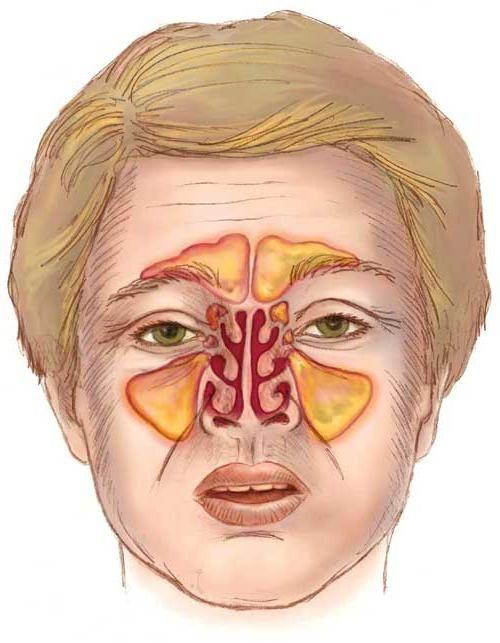 симптомы синусита лечение