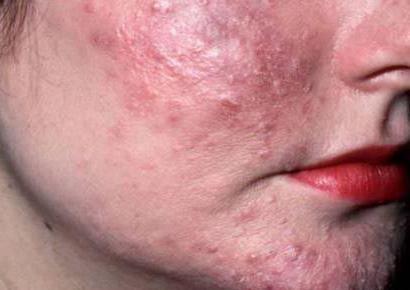 Клещ под кожей: признаки его появления и методы лечения