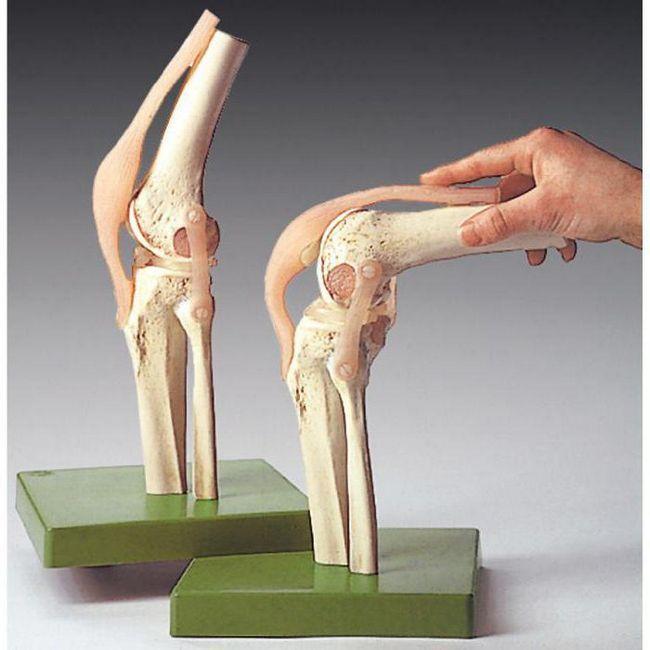 связки коленного сустава анатомия