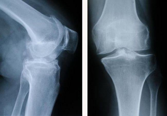 коленный сустав фото