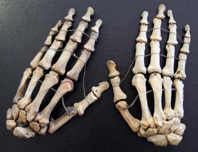 Кости скелета руки