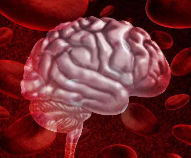 кровоизлияние в мозг симптомы