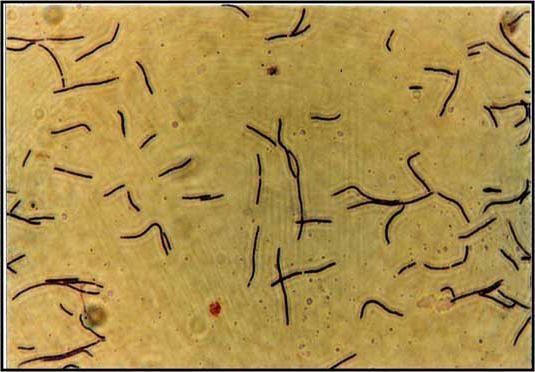 днк lactobacillus spp