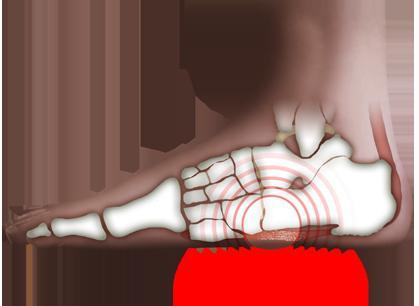 Лечебная гимнастика при плоскостопии помогает восстанавливать амортизирующие свойства стопы.