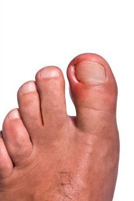 Лечение панариция на ноге - как можно сделать это без операции