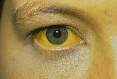 гепатит печени симптомы