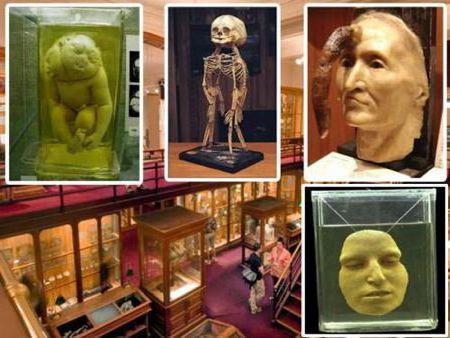 экспонаты Музея Мюттера
