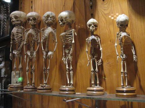 Музей медицинской истории Мюттера Пенсильвания фото экспонатов