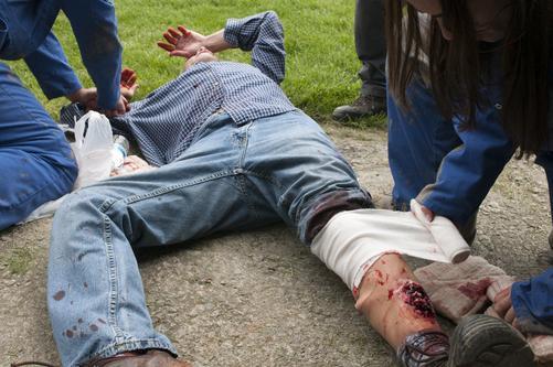 Оказание первой помощи при переломах: практические советы