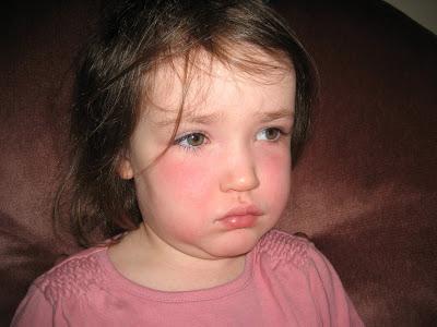 Основные признаки скарлатины у детей