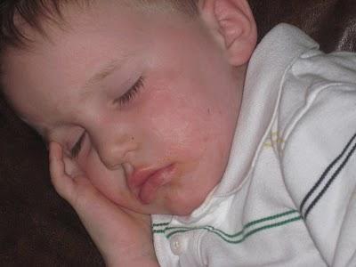 лечение скарлатины у детей