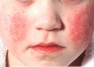 симптомы скарлатины у детей фото