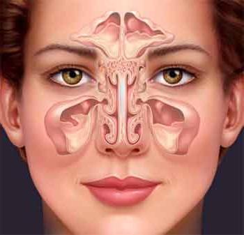 Острый синусит. Признаки болезни